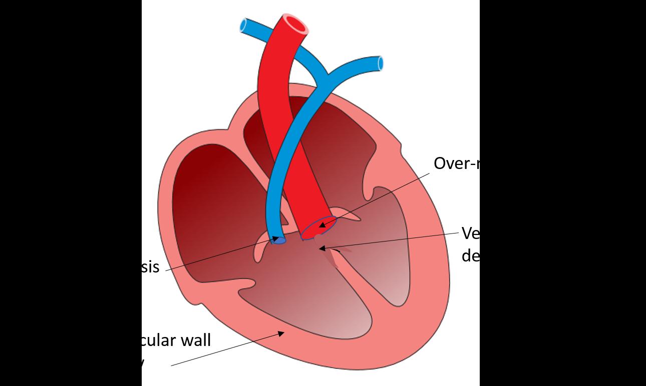 Heart - External and Internal Features - Anatomy QA