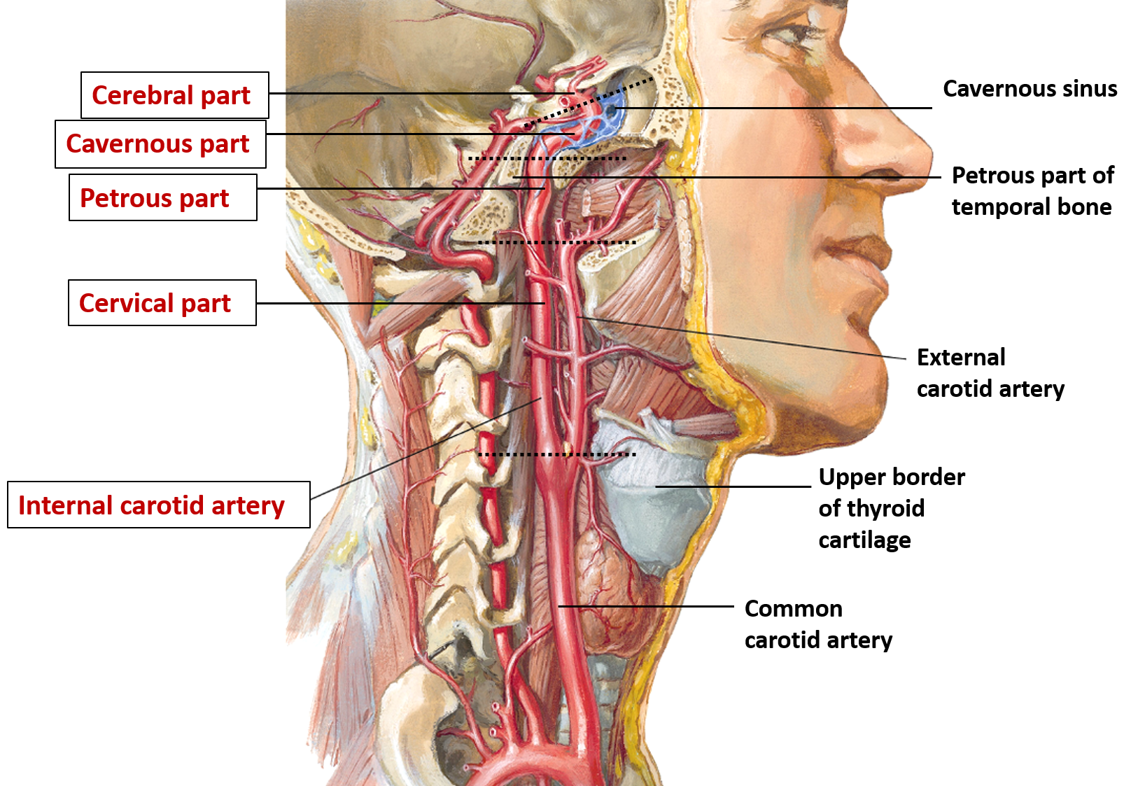Internal Carotid Artery -