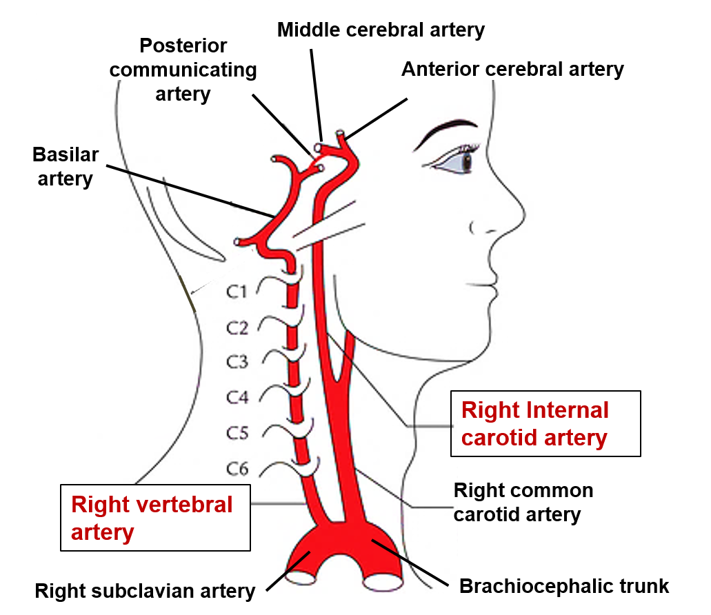 Brain Arterial Supply Circle Of Willis Internal Carotid